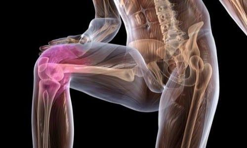 Ортофен купирует боли в суставах в состоянии покоя, а также при движении