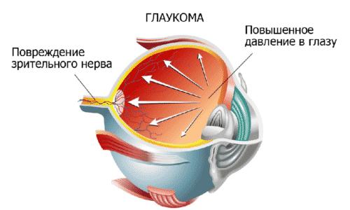 В офтальмологии запрещено использовать лекарство при наличии глаукомы