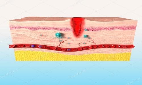 Главная цель приема средства заключается в том, чтобы оказать помощь организму в скорейшем восстановлении функций, регенерации тканей