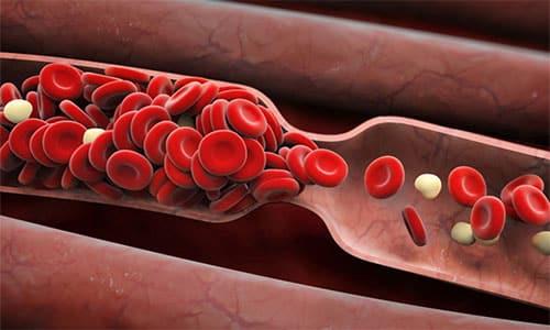 При комбинировании с антикоагулянтами возможно снижение показателей свертываемости крови