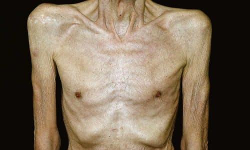 Метандиенон назначают при прогрессирующей мышечной дистрофии