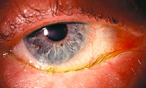При длительном использовании капель возможны такие проявления гормонального воздействия как язвы, помутнение, прободение роговицы