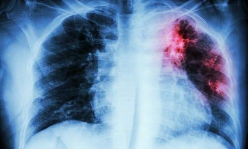 При туберкулезе принимать Дексаметазон противопоказано
