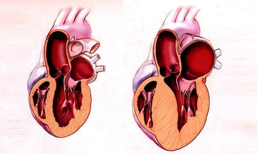 При применении препарата потребность мышечных тканей сердца в кислороде падает