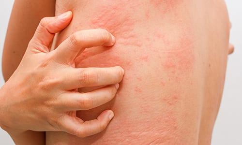 При местном использовании возможны аллергические реакции: покраснение, кожный зуд, жжение или высыпания