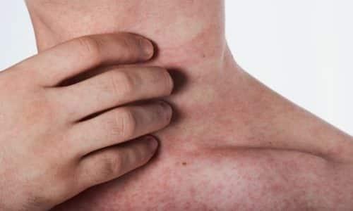 Пациента может беспокоить покраснение кожи или появление крапивницы