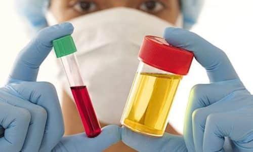 Тщательный анализ крови и мочи в период применения обязателен