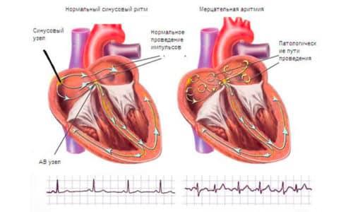 Аритмия (мерцательная аритмия) - частое проявление нарушений работы щитовидной железы при гипертериозе