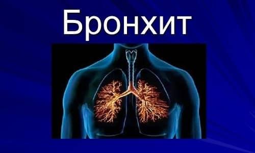 Препарат назначается в комплексном лечении бронхита