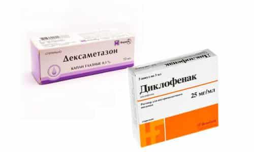 Дексаметазон и диклофенак - два препарата, используемые для подавления воспаления, снижения отечности