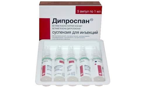 Дипроспан - эффективное противоаллергическое, иммунодепрессивное и противовоспалительное средство