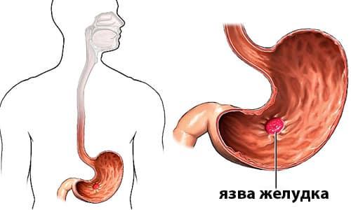 При передозировке препарата может обостриться язва