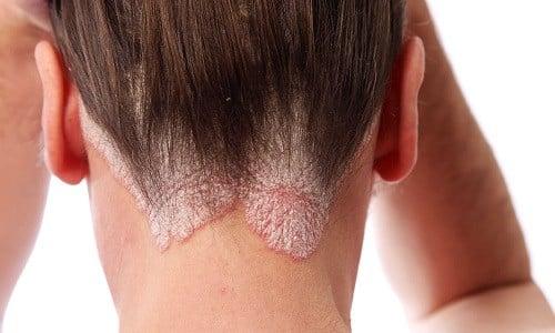 Наружное нанесение в жидком виде либо в составе шампуня, масла для волос противопоказано при повышенной индивидуальной чувствительности к витамину или вспомогательным веществам капсул
