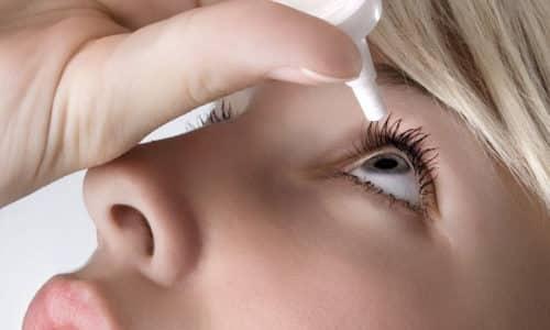 Одна из форм выпуска - глазные капли