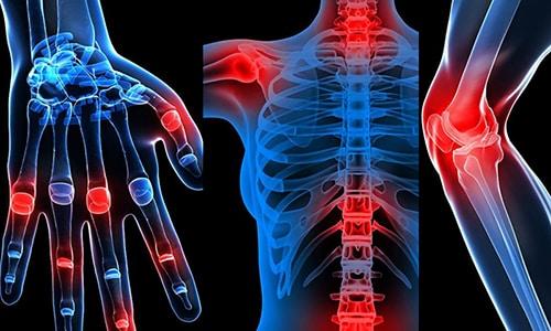 Мильгамма и Вольтарен часто включаются в курс терапии во время лечения следующих патологий: остеохондроз, ревматизм, болезни суставов, остеоартрит, остеоартроз и т.д