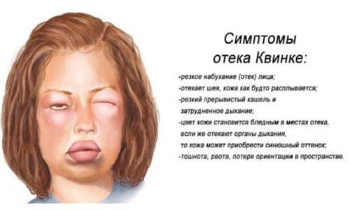 Передозировка гормональным медикаментом влечет за собой нежелательные последствия вплоть до отека Квинке