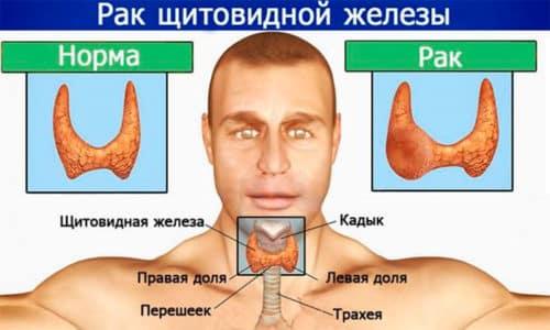 Рак щитовидной железы показан к применению Ленвима