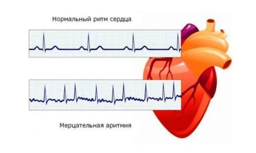 Существует вероятность развития аритмии (нарушения сердечного ритма) при одновременном применении сердечных гликозидов