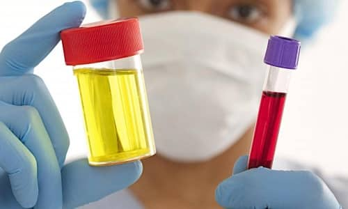 Для контроля за выведением лекарственного средства берутся анализы крови и мочи