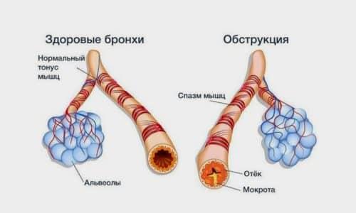 Осторожно Бетакор используют при хронических формах обструктивных патологий легких