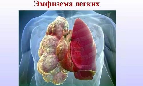 Препарат противопоказан при эмфиземе легких