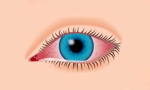 Дополнительные компоненты препарата могут вызывать покраснение глаз и слезотечение, раздражать слизистые оболочки