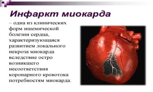 Препарат принимают с осторожностью при заболевании миокарда