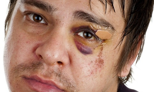 Капли Преднизолон назначаются при травмах глаза любого происхождения