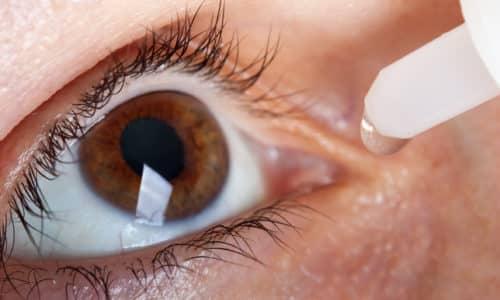 Глазные капли назначаются при оперировании хрусталика, конъюнктивите и т. д