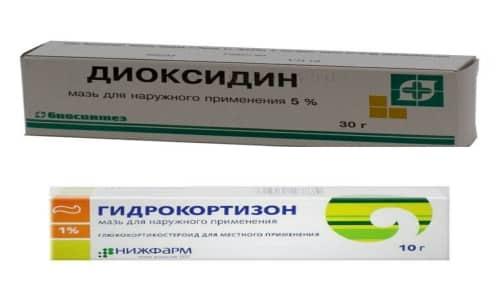 Препараты Диоксидин и Гидрокортизон широко используются в терапии спровоцированных патогенными микроорганизмами болезней лор-органов
