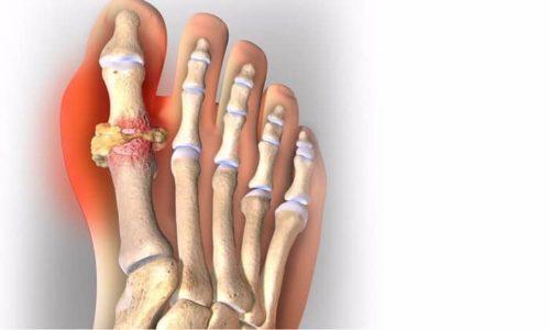 Диклофенак применяют при травмах и ушибах для пациентов, страдающих тендовагинитом