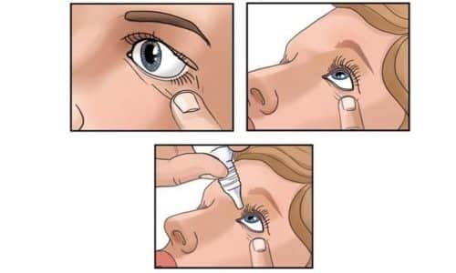 Бетаксолол закапывают в каждый глаз по 1 - 2 капли 2 раза в день