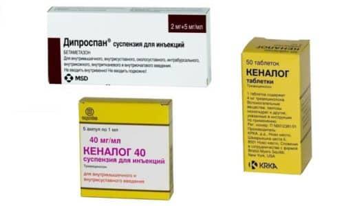 Кеналог и Дипроспан - глюкокортикостероидные препараты, обладающие противовоспалительным эффектом