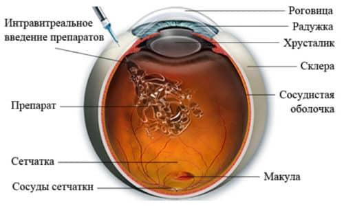Препарат показан для однократного интравитреального введения в пораженный орган зрения