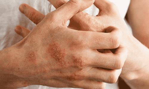 В редких случаях мазь может провоцировать появление экземы