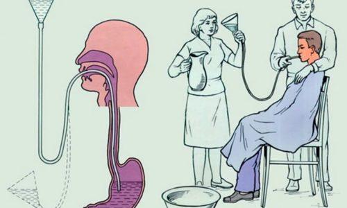 Симптомы передозировки купируются промыванием желудка