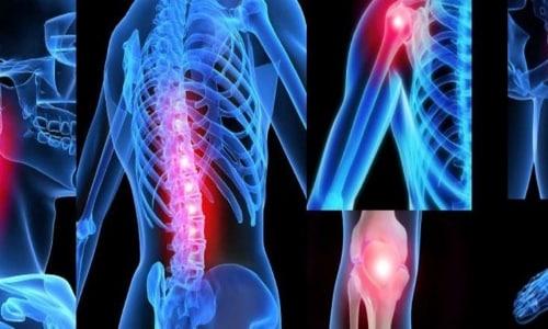 Гидрокортизон широко применяется в лечении суставов