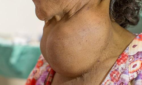 Эутирокс 25 показан к применению при токсической форме зоба