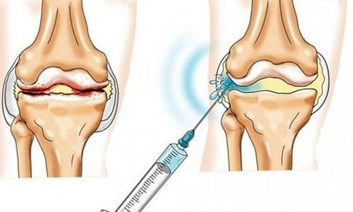 При выполнении внутрисуставной инъекции абсорбция препарата высокая