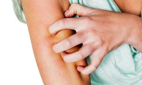 Витамин Е снижает воспаление и зуд кожи