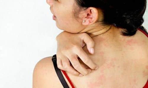 При наличии высокой чувствительности к l-тироксину 125 может возникнуть аллергия, в виде сыпи