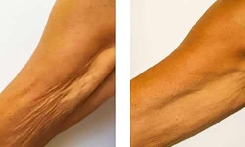Препарат показан при потере упругости кожи