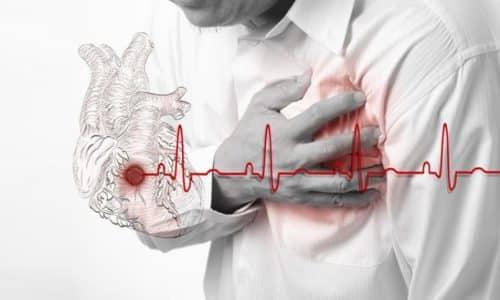 Инфаркт миокарда в остром течении является противопоказанием к применению препарата