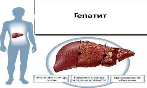 Прием препарата Эгилок РС может вызвать гепатит
