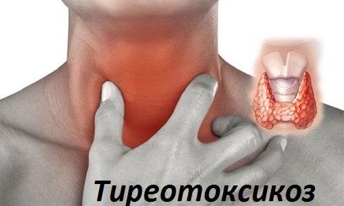 Назначают препарат Конкор при тиреотоксикозе