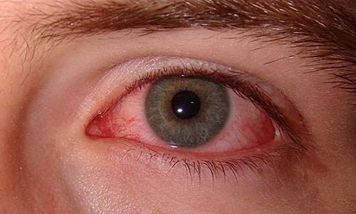 Уровень проникновения препарата зависит от воспалительного процесса и повреждений слизистой оболочки